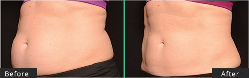 Female Abdomen CoolSculpting Before and After
