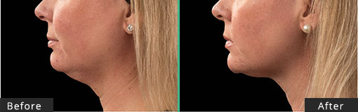 Female-Submentum CoolSculpting Before and After